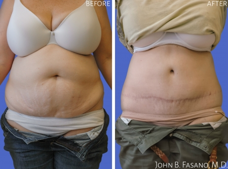 Abdominoplasty-1-022020