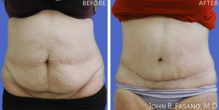 Abdominoplasty-2-022020