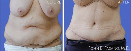 Abdominoplasty-3-022020