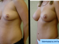 B&A-Abdominoplasty-1