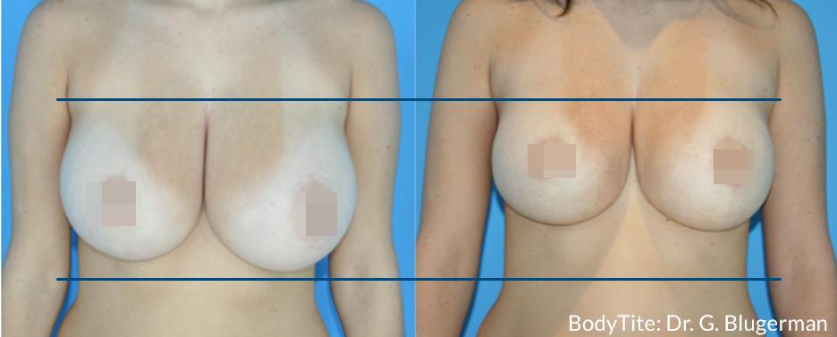 BodyTite Breast