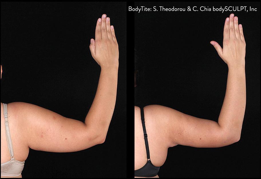 BodyTite Right Arm