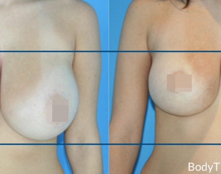 BodyTite Breast