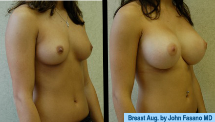 B&A-Breast Aug-1