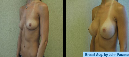 B&A-Breast Aug-2B