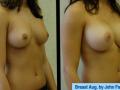 B&A-Breast Aug-1