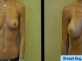 B&A-Breast Aug-2A