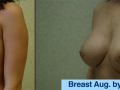 B&A-Breast Aug-4B