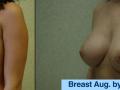 B&A-Breast Aug-4B
