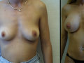 B&A-Breast Aug-5A