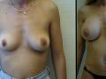 B&A-Breast Aug-5A