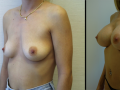 B&A-Breast Aug-5B