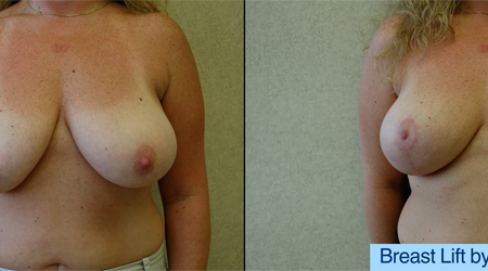 B&A-Breast Lift-1A