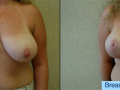 B&A-Breast Lift-1A