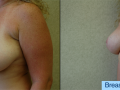 B&A-Breast Lift-1B