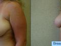 B&A-Breast Lift-1B