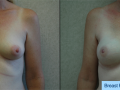 B&A-Breast Reconstruction-1A