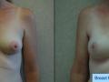 B&A-Breast Reconstruction-1A
