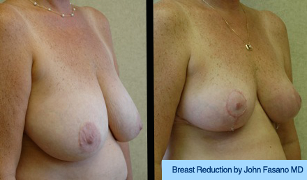 B&A-Breast Reduction-1