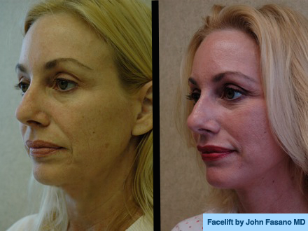 Before & After: Face Gallery   Dr  John Fasano