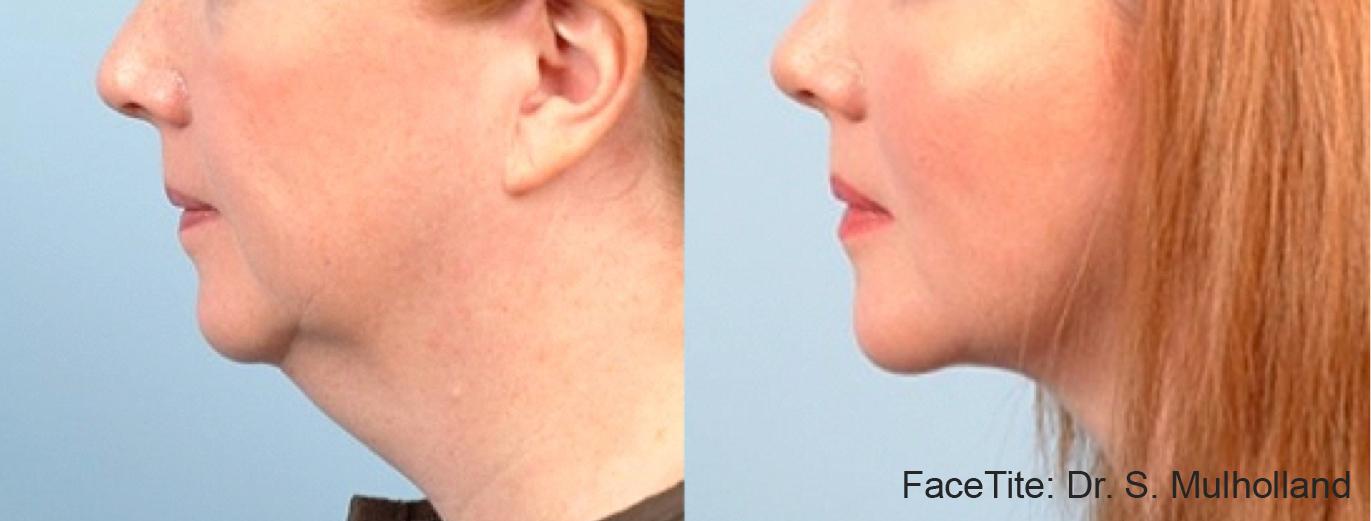 FaceTite Chin 3