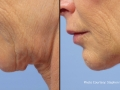 FaceTite Chin 1