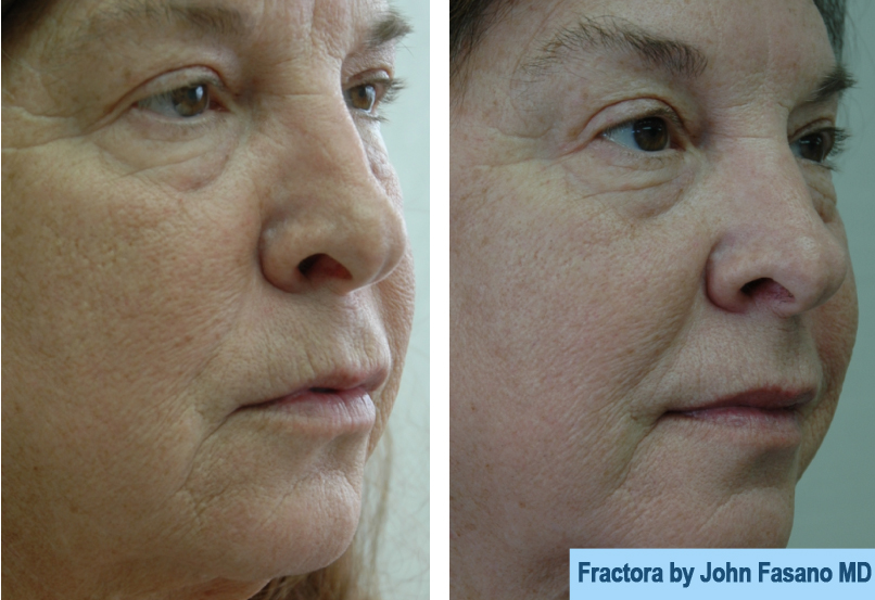 Before & After: Face Gallery | Dr  John Fasano