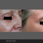 Fractional Laser Wrinkle Treatment