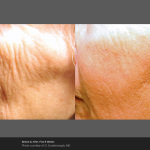 Fractional Laser Wrinkle Treatment Around Mouth