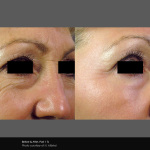 Fractional Laser Wrinkle Treatment Around Eyes