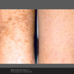 Pigmentation Correction on Arms with Palomar Icon